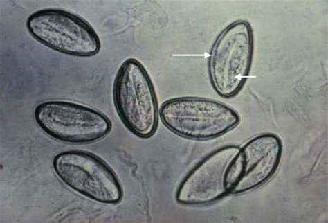 Nematodes - Review of Medical Microbiology and Immunology