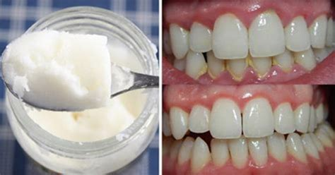 Oil Pulling Benefits - Stop Bad Breath, Plaque And