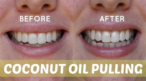 The Power of Oil Pulling: 7 Amazing Health Benefits
