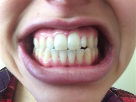 Does Oil Pulling Work To Whiten Your Teeth? I Tried It For